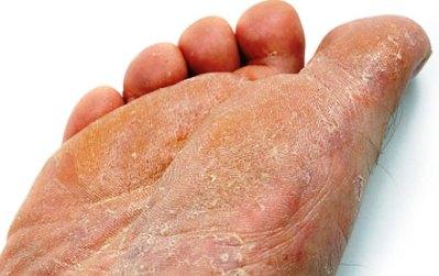 Auf dem Bein unter dem Nagel die Leere, wie zu behandeln